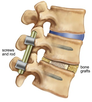 Spinal Fusion to Treat Lower Right Back Pain
